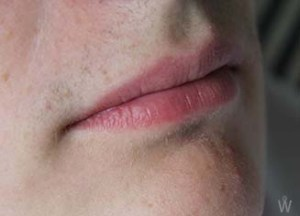 Mouth (2)
